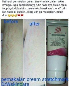 Testimoni krim selulit Drw Skincare