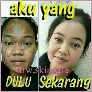 testimoni kapsul acne Drw Skincare