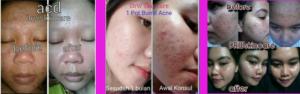 Testimoni Jerawat Drw Skincare