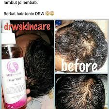 Testimoni Hair tonic Drw Skincare