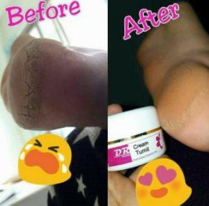 Krim tumit Drw Skincare